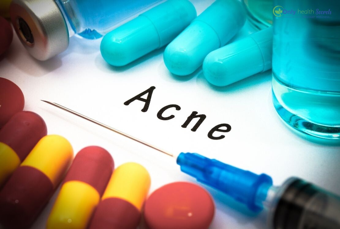 What Causes A Person To Have Acne